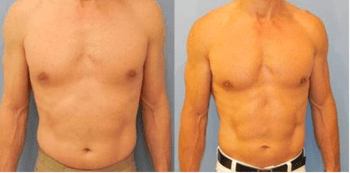 SlimLipo® laser liposuction before and after