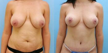 Structural breast lift