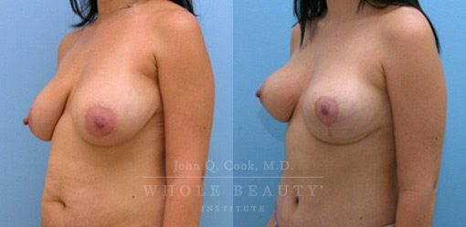 breast-lift-case-5-1-front