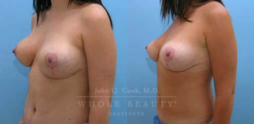 breast-lift-case-5-3-front