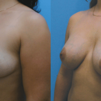 Breast Augmentation with Pectoral Repositioning