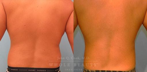 liposuction-case-5-04