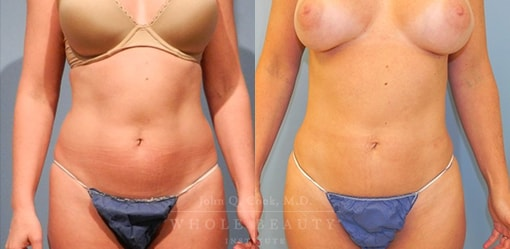 liposuction-case-5-01