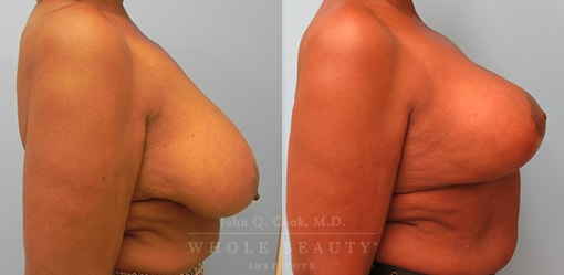 breast-reduction-case-9