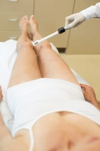 vaginal rejuvenation patient chicago