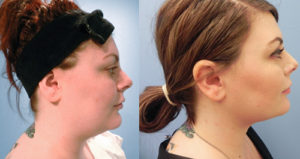 facetite patient before and after
