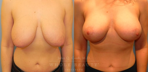 front facing structural breast surgery