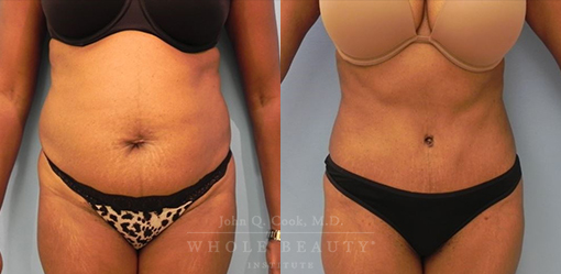 abdominoplasty-case-19