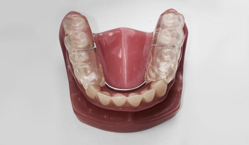 Splints  Nightguards  Johns Dental
