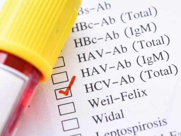 List of hepatitis viruses with hepatitis C checked off and a blood sample next to it