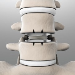 Best Chair After Back Surgery Office Zen Spinal Disc Replacement Supporting Pain Free Mobility Through Next Artificial Or When Is It Necessary C Kinetics