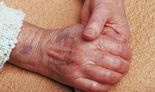 bruising arthritis