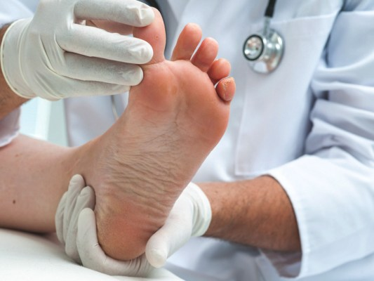 a broken toe joint with doctor