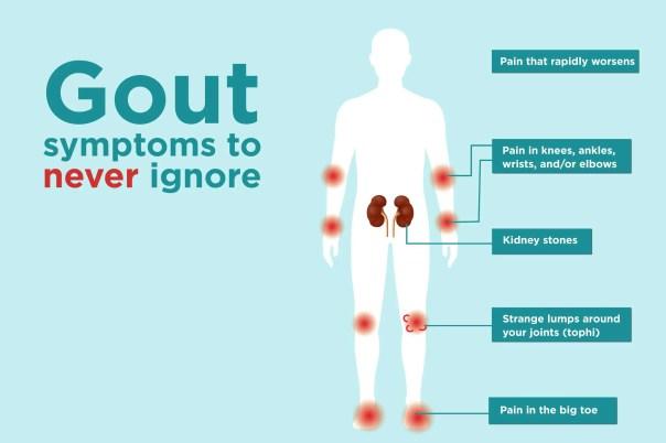 gout symptoms allopurinol
