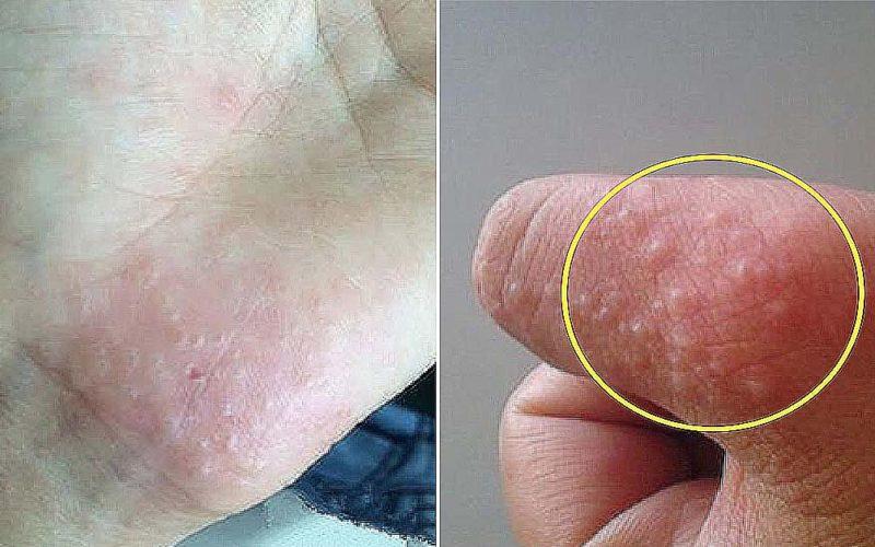 天熱時手上總起癢癢的「透明小水泡」,只需這樣做就能預防! – 爆笑博客