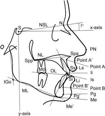 Stability of Soft Tissue Profile After Mandibular Setback