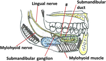 Clinical Anatomy of the lingual nerve: a review - Journal of Oral and Maxillofacial Surgery