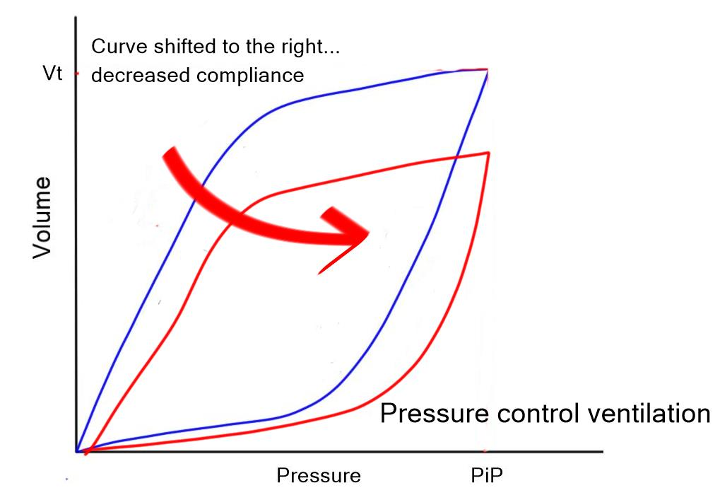 Pressure volume curve compliance PC