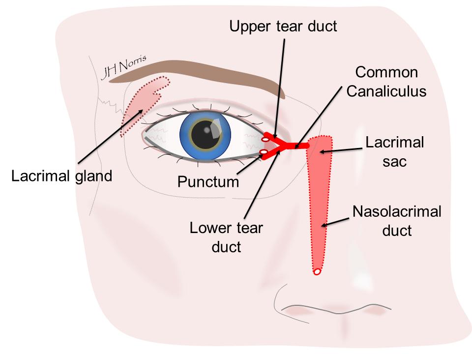 DCR watery eye surgery  Jonathan Norris