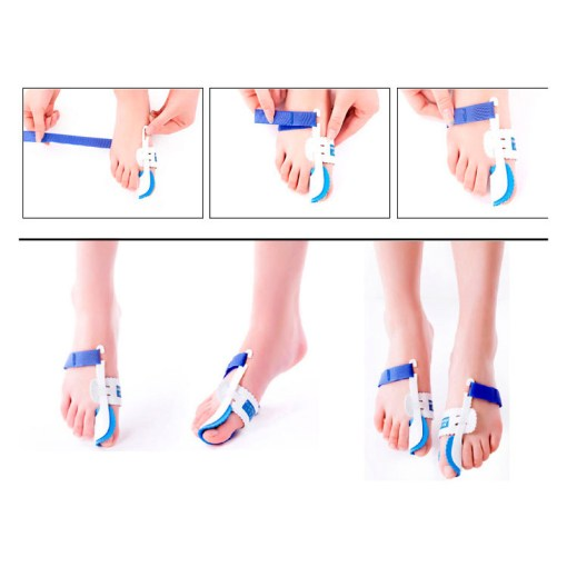 Bunion-Device-Hallux-Valgus-Orthopedic-Braces-Toe-Correction-Night-Foot-Care-Corrector-Thumb-Goodnight-Daily-Big-4.jpg