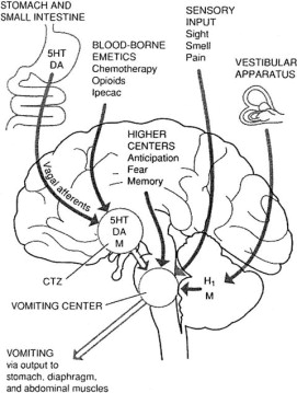 Postoperative nausea and vomiting: Understanding the