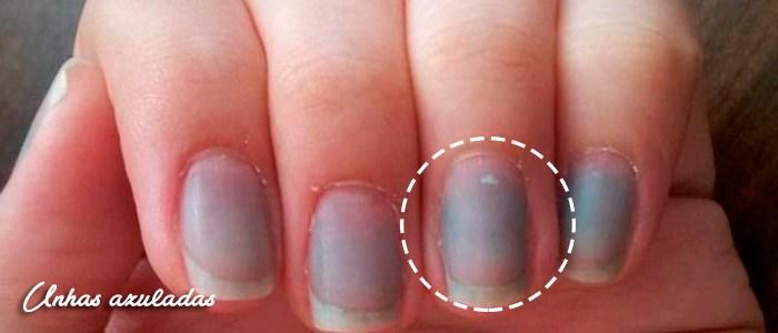 Resultado de imagem para Faixas escuras nas pontas das unhas doença