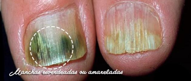 identificar-doencas-atraves-das-unhas_09