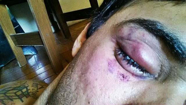 Vítima de homofobia, ator tem visão prejudicada após agressão