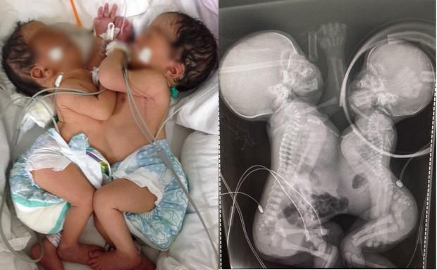 Novo exame médico descobre segundo coração e gêmeas siamesas compartilham somente o fígado