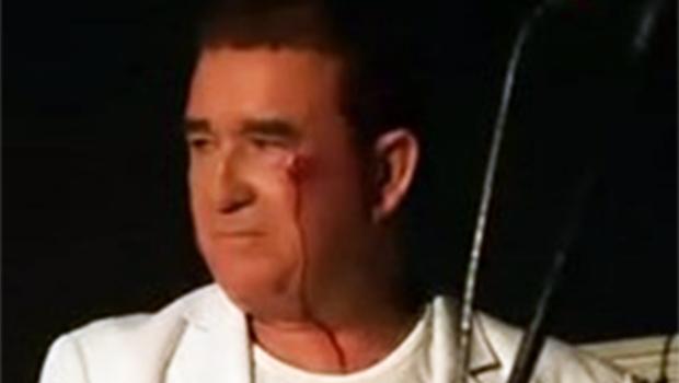 Veja vídeo. Amado Batista deixa palco com rosto sangrando após ser atingido por pedra