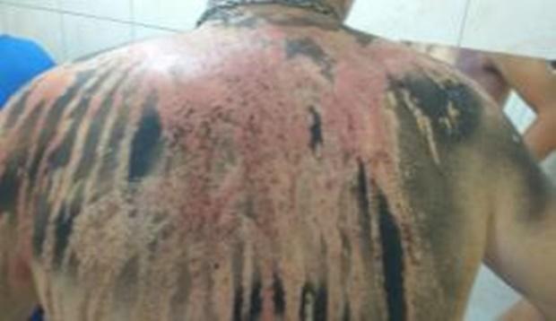Trote provoca queimaduras graves em estudantes com mistura de creolina e larvicida