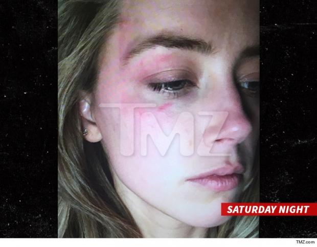O site norte-americano TMZ divulgou imagens da atriz com hematomas no rosto após agressão   Foto: reprodução TMZ