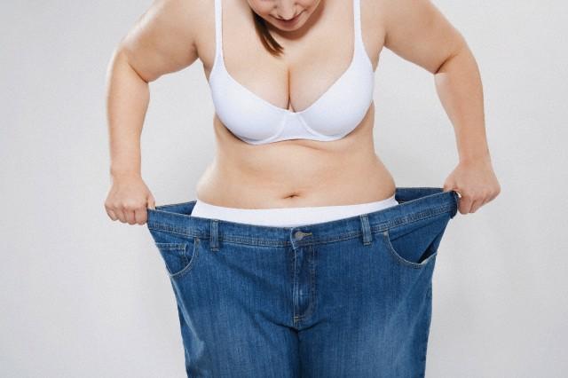 50% dos pacientes que realizam a cirurgia bariátrica acabam retornando ao peso antigo após 5 anos