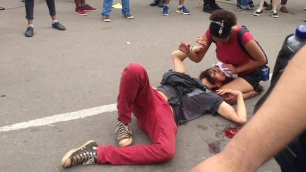 Estudante ferido por PM em protesto passa por cirurgia de reparação dos ossos frontais