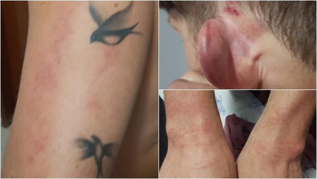 """Cliente agredido por segurança irá processar hipermercado de Goiânia: """"Foi humilhante"""""""