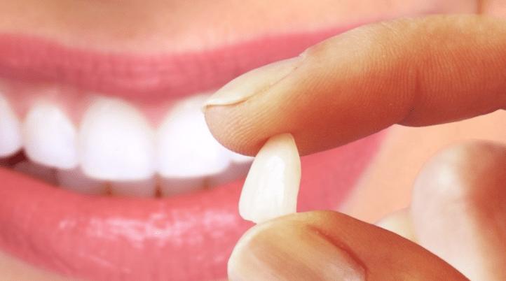 Resultado de imagem para resina x ceramica dente