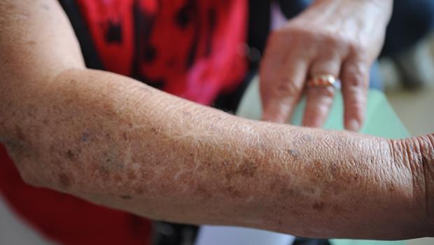 Em 10 anos, câncer de pele causou mais de 30 mil mortes no Brasil