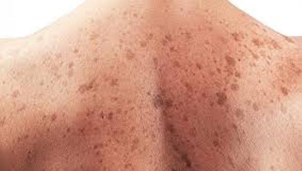 Pesquisadores goianos desenvolvem técnica não invasiva de diagnóstico de tumores na pele