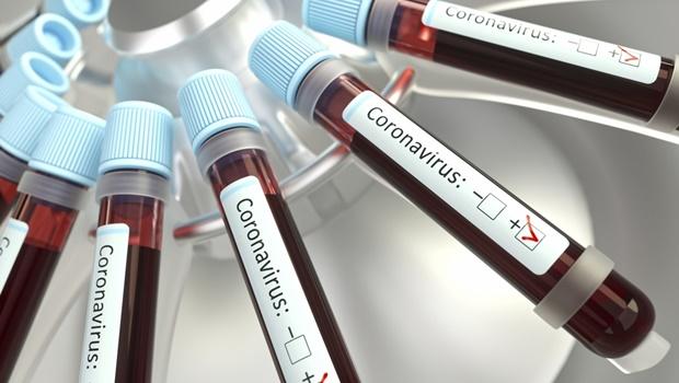 Justiça derruba liminar que obrigava planos de saúde a cobrir exame de sorologia para Covid-19