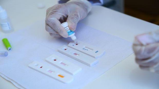 Aparecida intensifica testagem para detecção de HIV e outras DST's