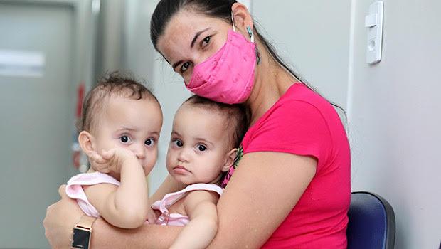 Laura, bebê siamesa separada no HMI recebe alta