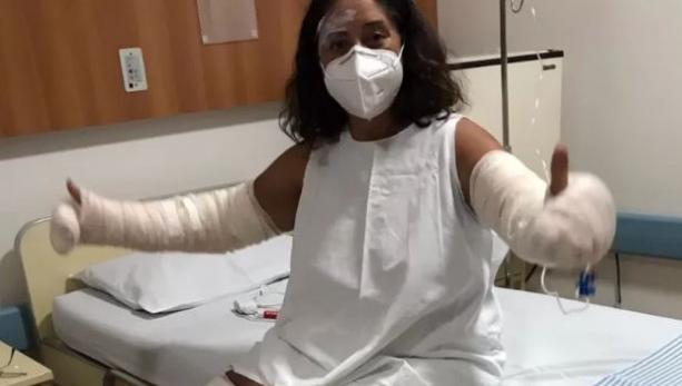 Professora tem 40% do corpo queimado após explosão de frasco de desodorante