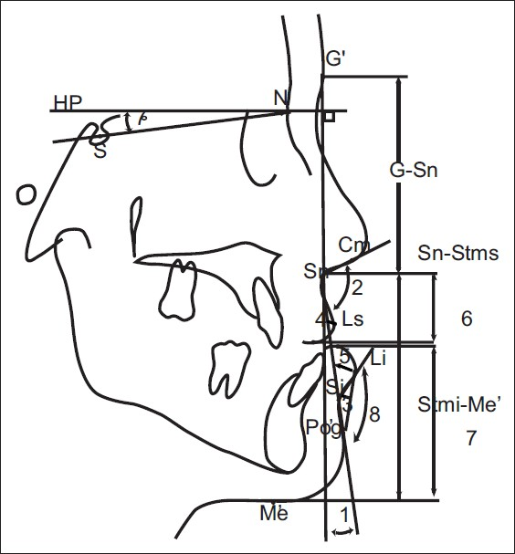 Soft and hard tissue changes after bimaxillary surgery in