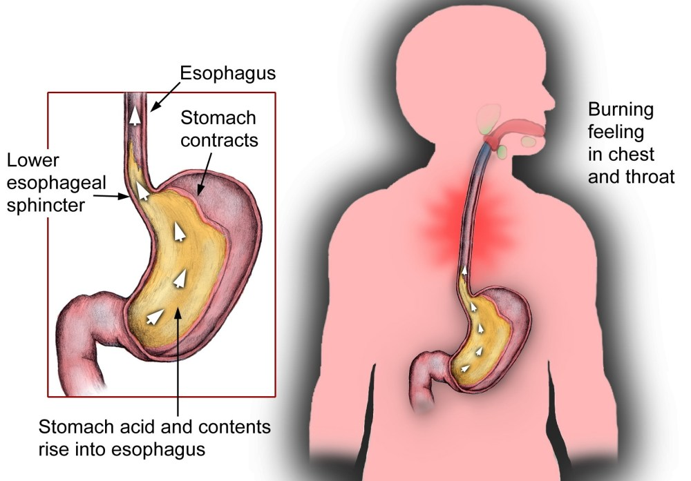 medium resolution of why you have reflux bloating gas and burping and what to do josh gitalis