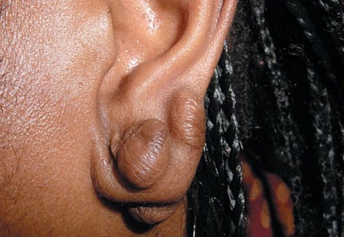 Keloid on the earlobe; this is easier to treat than keloids occurring in other parts of the bod.