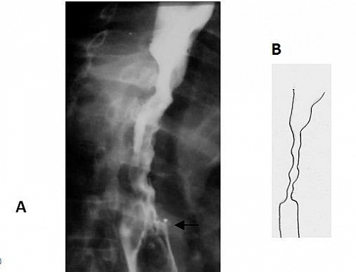A - Radiologic image; B - the modified and simple image; A long stricture on barium swallow in a middle aged man involving the mid oesophagus. There is irregularity of the lumen due to mucosal destruction. The transition from non-involved to involved oesophagus is more abrupt than with a benign stricture and is shouldered in appearance rather than tapered. The upper and lower limits are marked by arrows.