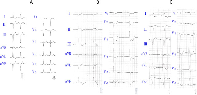 Cardiac memory-induced T wave change during complete