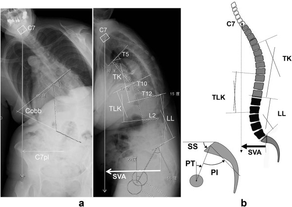 Characteristics Of Spinopelvic Alignment In Parkinson'