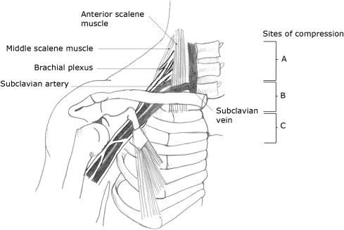 Thoracic outlet syndrome part 1: Clinical manifestations