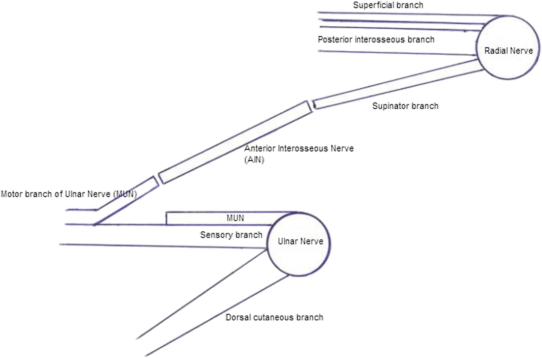 Supinator to ulnar nerve transfer via in situ anterior